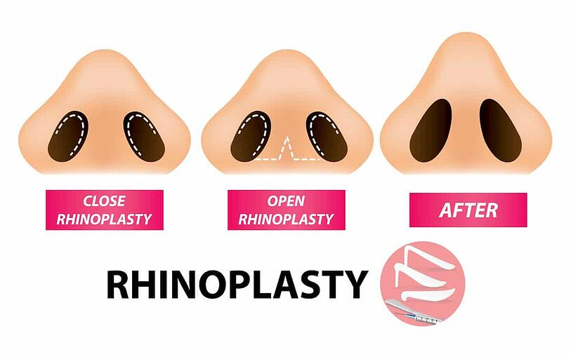 Rhinoplasty in Houston: Open vs Closed Surgical Approach
