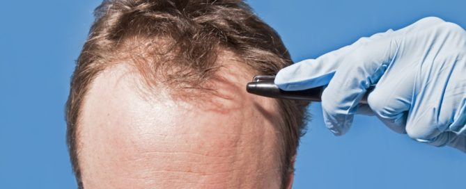 3 Popular Hair Restoration Techniques