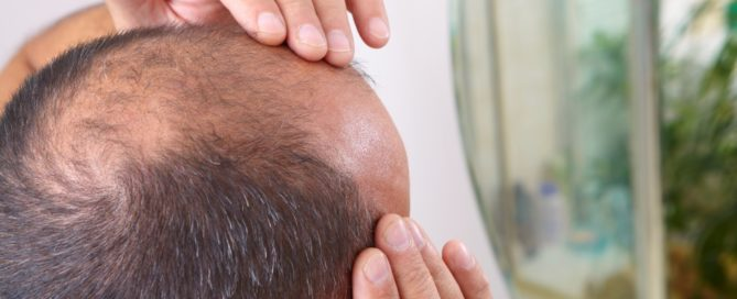 Guys & All Things Male Pattern Hair Loss