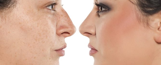 What Rhinoplasty Can & Cannot Accomplish