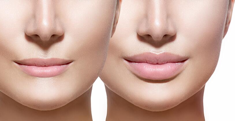 Lip Fillers Can Give You These 5 Benefits…