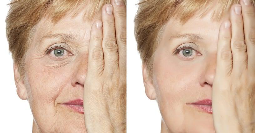 Understanding Dermal Fillers for Best Results