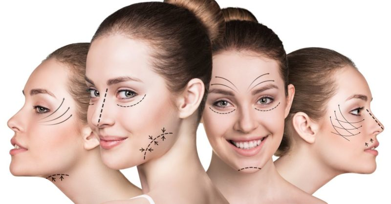 5 Signs It's Time for a Facelift