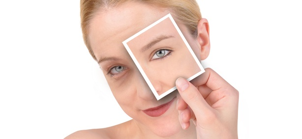 Things to Know About Blepharoplasty