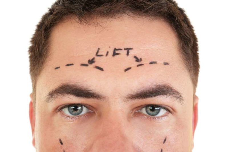 How to Get the Most from Browlift Surgery