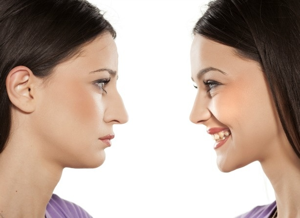 Rhinoplasty: Things To Consider