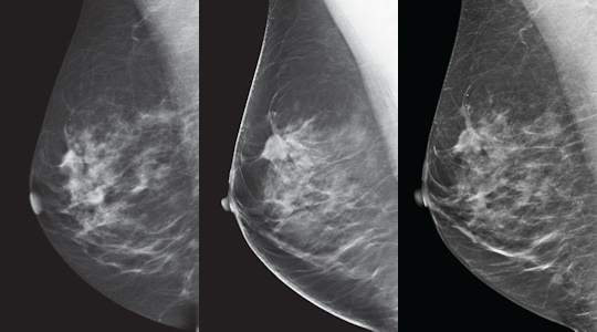 tomosynthesis vs digital mammography Friedewald and coauthors conducted a retrospective analysis of screening performance metrics to determine if addition of tomosynthesis to digital mammography im.