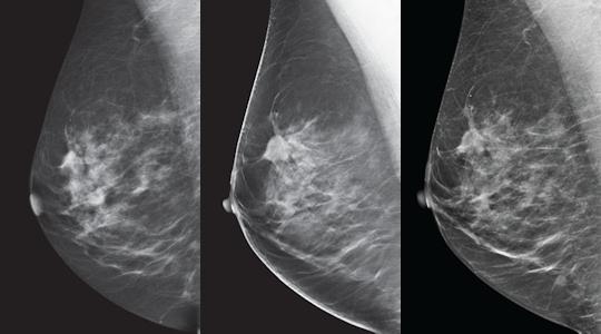 Dicom digital breast tomosynthesis