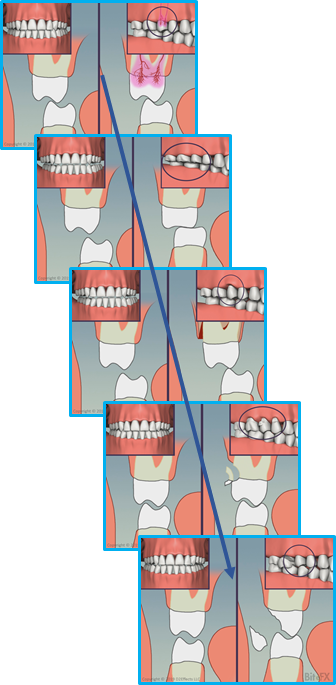 Molars-Guidance-Comparison-with-Insets-Combo