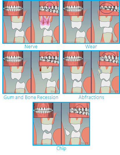 Molars-Guidance-Comparison-with-Insets-Individuals-Grouped