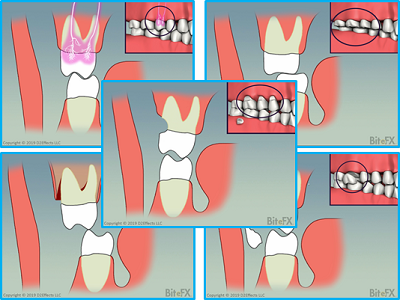Molars-no-Guidance-with-Insets-5-Views-400x300