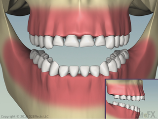 CorrectingSupraEruptionWithFrontToothWear-End-Before-Veneers.png