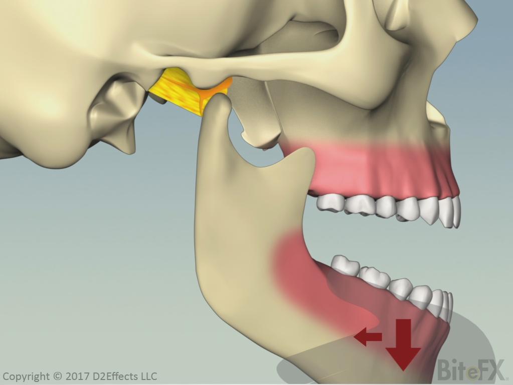 Subluxation-Of-The-Temporomandibular-Joint.png