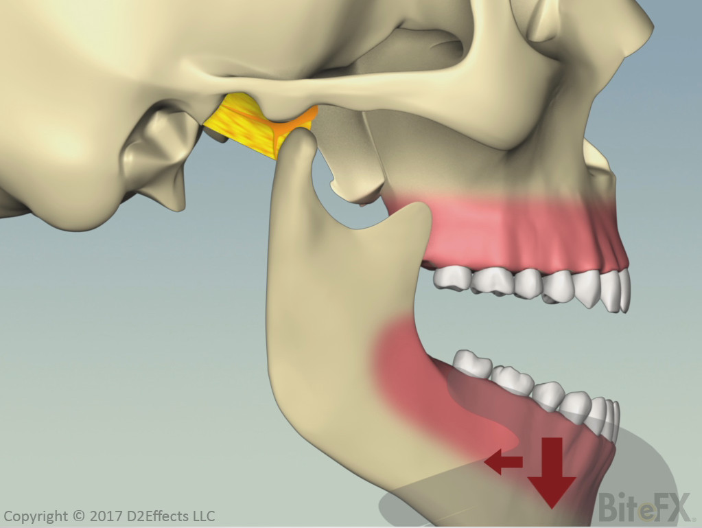 Subluxation-Of-The-Temporomandibular-Joint.png