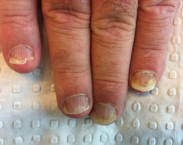 The nails giveth the diagnosis