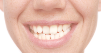 Crooked Teeth: Causes, Risks, and Treatment