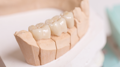 Fixed Dental Bridge - The Best Alternative to Dental Implants