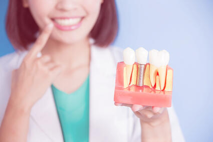 Dental Implants - 7 Common Questions Answered