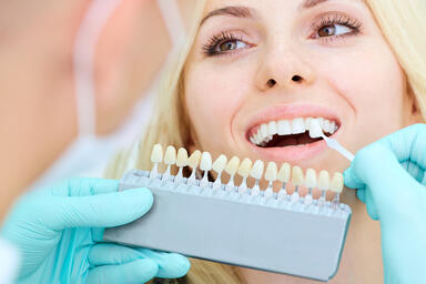 Which Teeth Whitening Method Should You Choose?