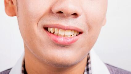 Causes of Tooth Discoloration and How to Prevent and Treat It