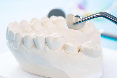 Dental Crowns: Purpose, Types, Procedure, Care, and Cost