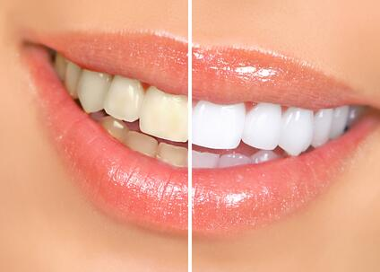 Achieve a Brighter Smile Faster With Professional Teeth Whitening