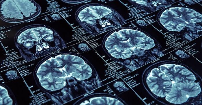 Brain-Scan-Thumbnail