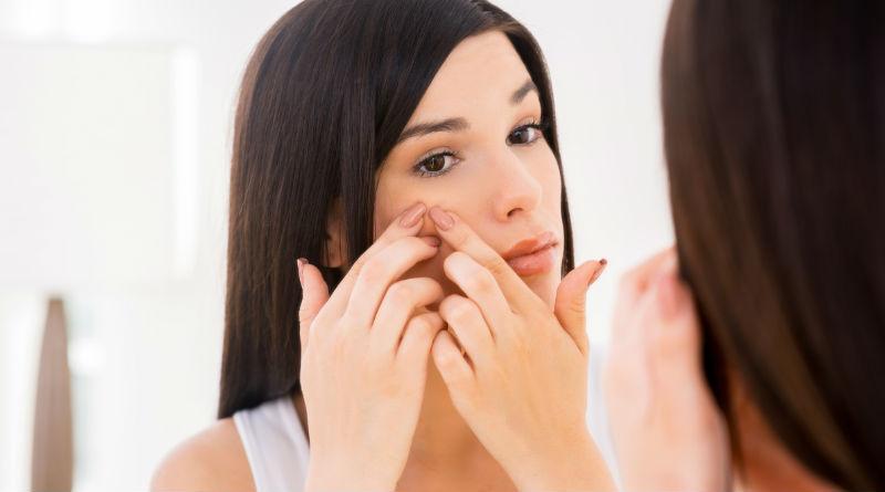 Alimentos para prevenir el acné - Featured Image