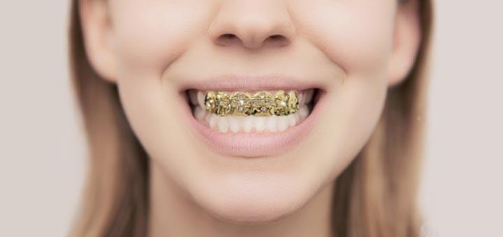 ¿A la moda? Así afectan las parrillas o grills dentales a tu dentadura