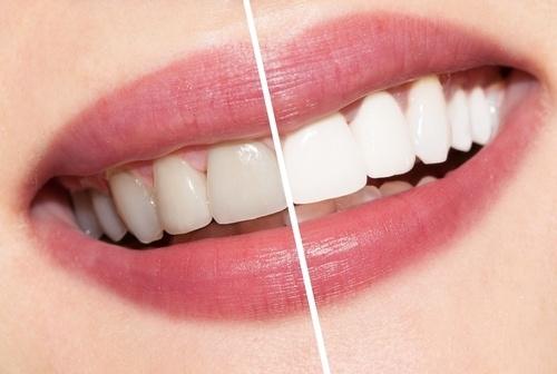Lo que debes saber sobre el blanqueamiento dental - Featured Image
