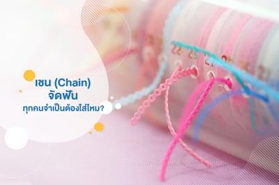 เชน (Chains) จัดฟัน ทุกคนจําเป็นต้องใส่ไหม?