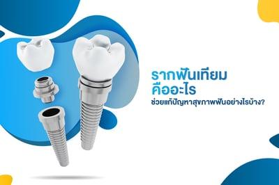 รากฟันเทียมคืออะไร ช่วยแก้ปัญหาสุขภาพฟันอย่างไรบ้าง?