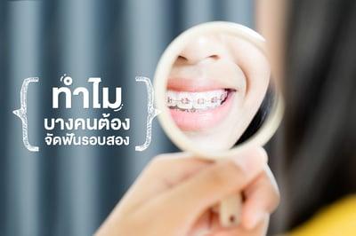 ทำไมบางคนต้อง จัดฟันรอบสอง