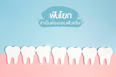 ฟันโยก จำเป็นต้องถอนฟันหรือ?
