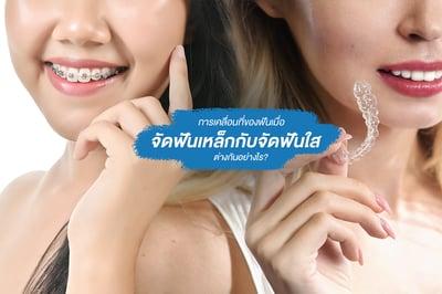 การเคลื่อนที่ของฟันเมื่อ จัดฟันเหล็กกับจัดฟันใส ต่างกันอย่างไร?