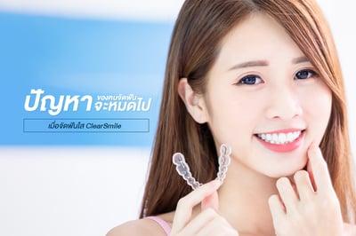 ปัญหาของคนจัดฟัน จะหมดไป เมื่อจัดฟันใส ClearSmile