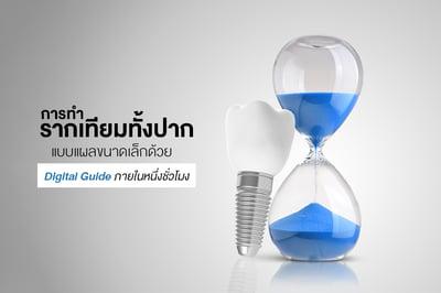 การ ทำรากเทียมทั้งปาก แบบแผลขนาดเล็กด้วย Digital Guide ภายในหนึ่งชั่วโมง