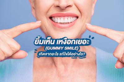 ยิ้มเห็น เหงือกเยอะ (GUMMY SMILE) เกิดจากอะไร? แก้ไขได้อย่างไร?