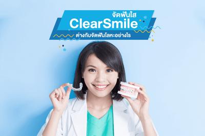 ClearSmile จัดฟันใส แตกต่างกับจัดฟันโลหะอย่างไร