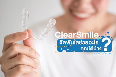 ประโยชน์ จัดฟันใส ClearSmile ช่วยอะไรคุณได้บ้าง?