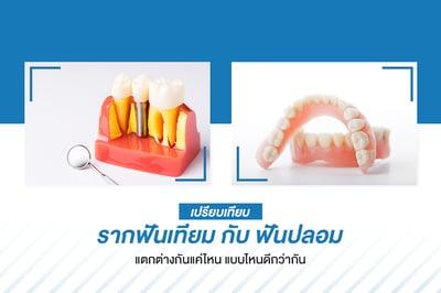 เปรียบเทียบ รากฟันเทียม กับ ฟันปลอม แตกต่างกันแค่ไหน แบบไหนดีกว่ากัน