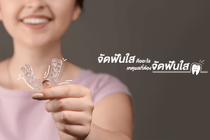 invisible-aligners-cover