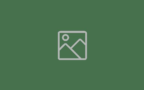 Faceshield antifog- XML MED_-1
