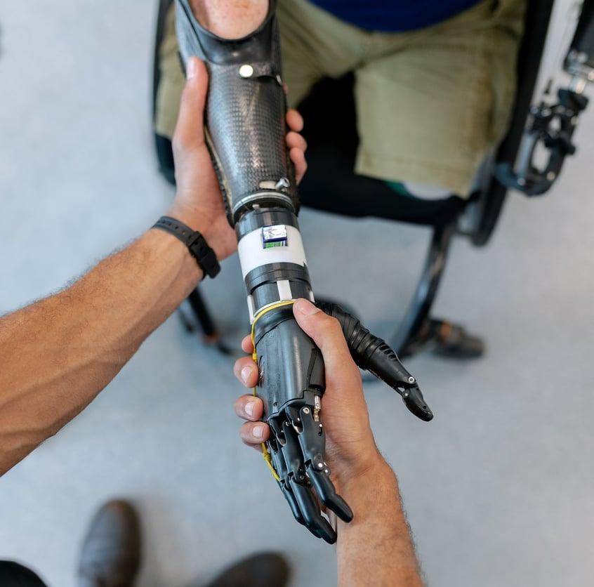 MYOTACT, pour faciliter l'utilisation de prothèses de membres supérieurs