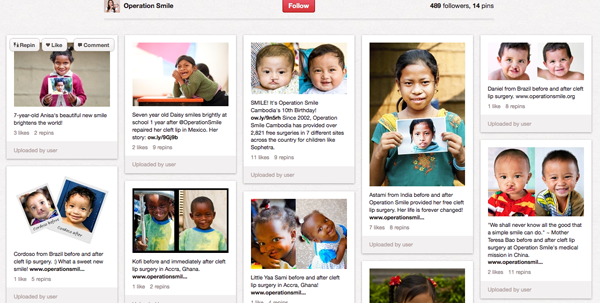 Operation Smile Pinterest