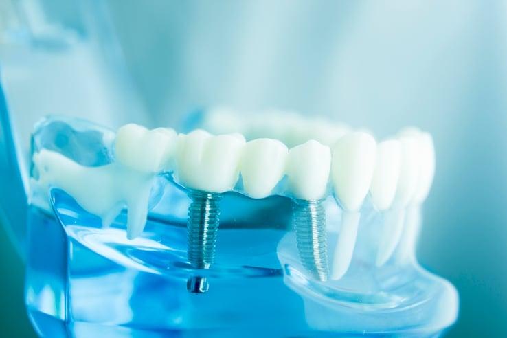 Impianto dentale, protesi e ponte quali sono le differenze