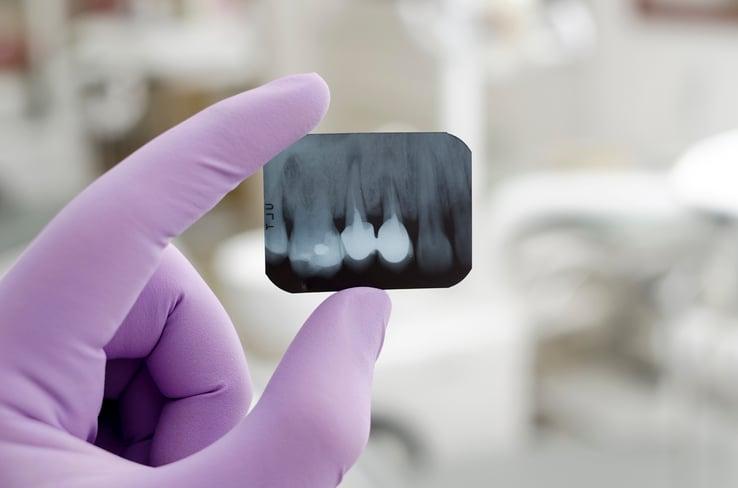 radiografia_implantologia_con_poco_osso
