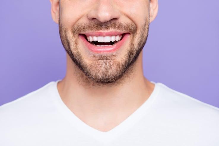 sorriso_con_gengive_sane