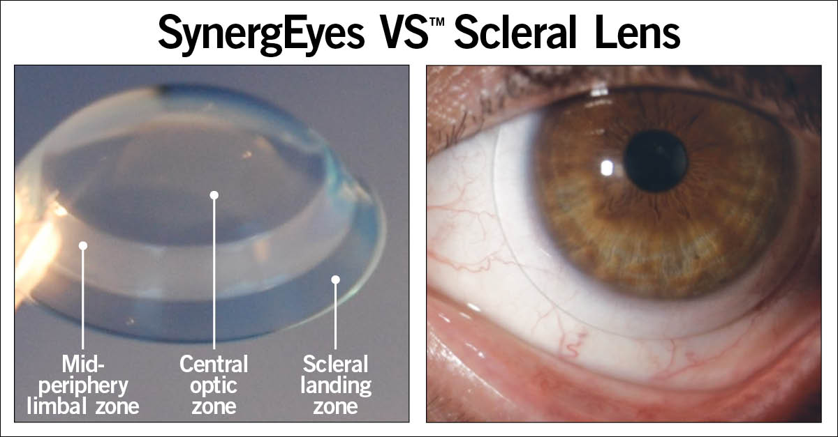 SynergEyes VS<sup>TM</sup> Scleral Lens