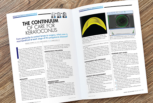 Continuum of Care on Contact Lens Spectrum
